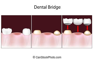 Procedimiento del puente dental
