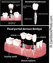 Procedimientos dentales en negro