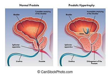 prostatic, hipertrofia