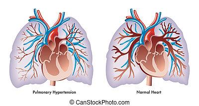 pulmonar, hipertensión