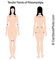 Puntos de fibromialgia, eps8