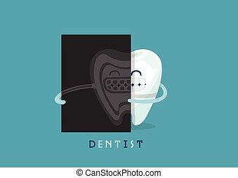 radiografía, diente