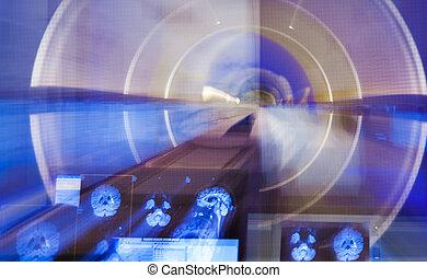 radiografía, mancha, explorador, cerebro