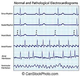 Recolección normal de electrocardiogramas