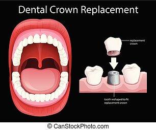 Reemplazo dental de boca humana