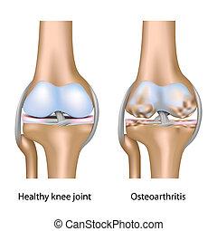 rodilla, osteoartritis, eps10, coyuntura