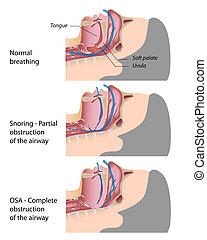 Roncando y durmiendo apnea, Eps10