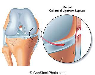 Rotura de ligamento colateral medial