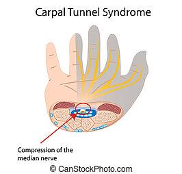 Síndrome del túnel carpiano, Eps10
