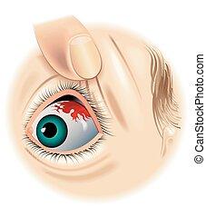 subconjunctival, hemorragia