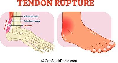 Tendon rompe el ejemplo anatómico, diagrama de ilustración vectorial, esquema médico educativo.