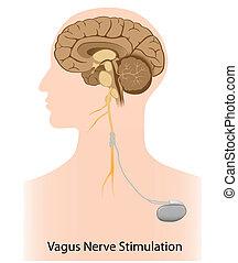 Terapia de estimulación nerviosa vaga