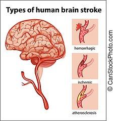 Tipos de golpe cerebral humano