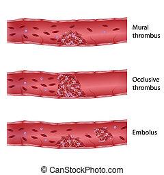 Tipos de trombosis, eps10