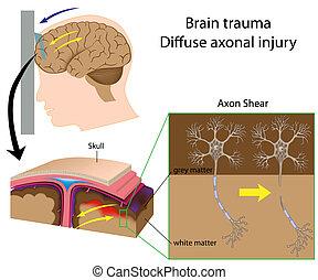 Trauma cerebral con tijeras, eps8