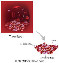 Trombosis, eps10
