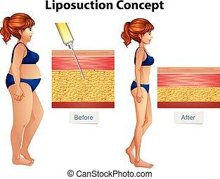 Un diagrama de liposucción humana