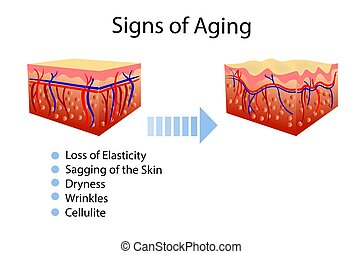 Un diagrama de vectores con signos de envejecimiento, dos tipos de piel, para ilustraciones cosmetológicas y de salud