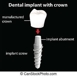 Un implante dental con corona