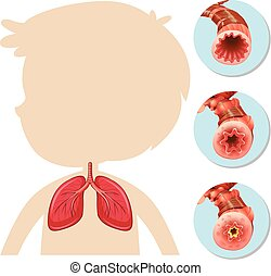 Una anatomía de pulmón infantil