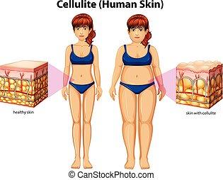 Una comparación de mujeres con celulitis