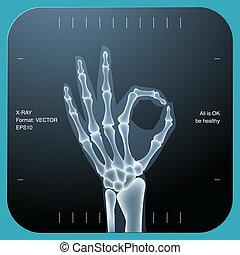 Una radiografía de ambas manos humanas