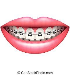 vector, fierros, dientes, aislado, sonrisa, blanco, mujer