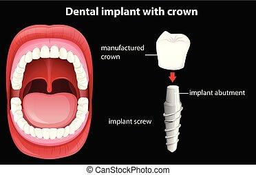 Vector médico de implante dental