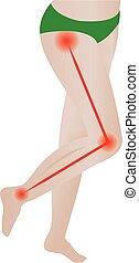 vector, nerve., coyuntura, espalda, pain., ilustración, sciatic