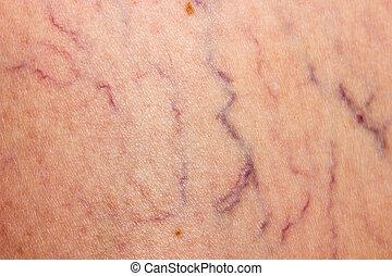 venas, afectado, varicose