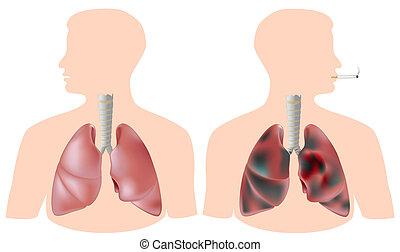 vs., pulmón, smoker's, sano